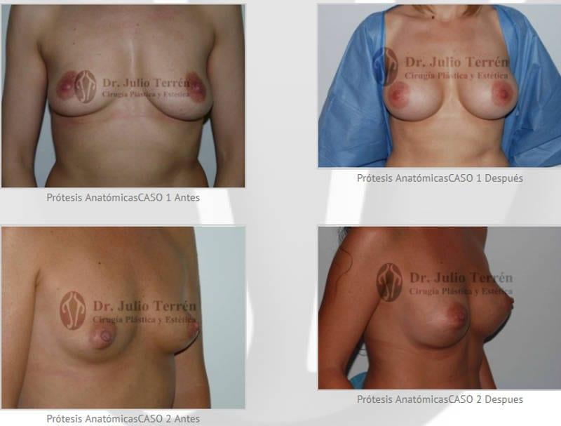 galería de fotos del antes y despues de la operación